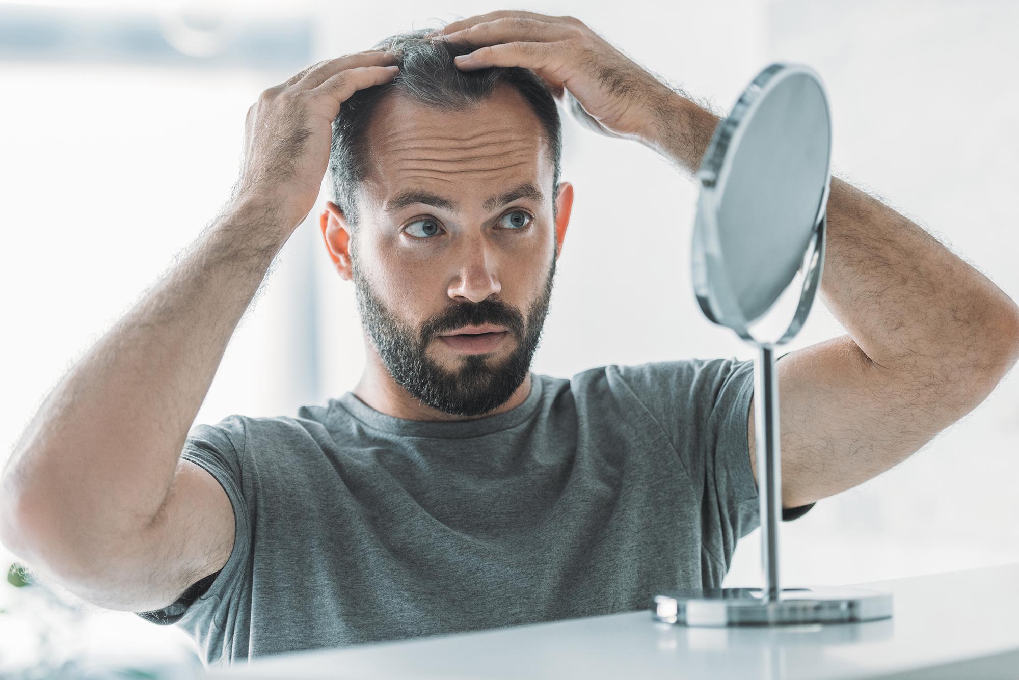 Co powinno się wiedzieć o przeszczepie włosów?